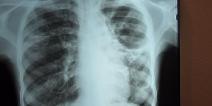 Las tasas de cáncer de pulmón en los EE. UU. se están reduciendo en general, según un estudio
