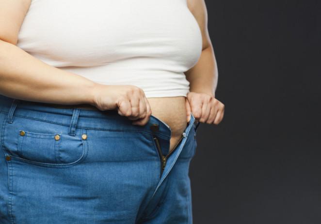 Obesidad cuesta 8.000 millones de dólares al año en pérdida de productividad