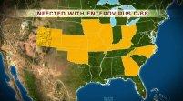 Muere segundo niño en EEUU tras contraer inusual virus respiratorio