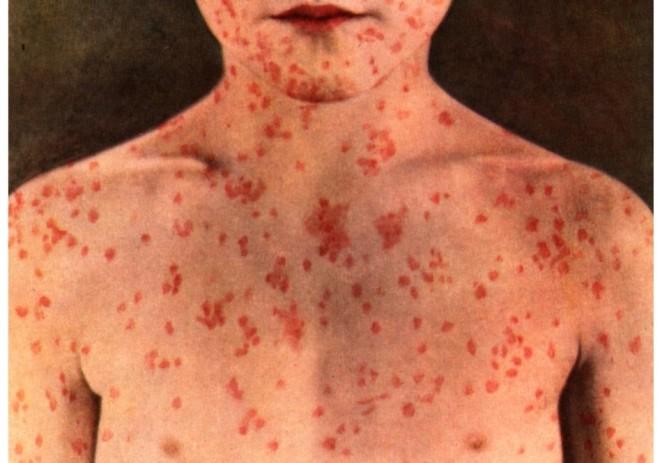 El brote de sarampión en California muestra lo rápido que una enfermedad puede resurgir en EE. UU.