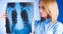 Cáncer de pulmón, el que más mujeres mata en países ricos
