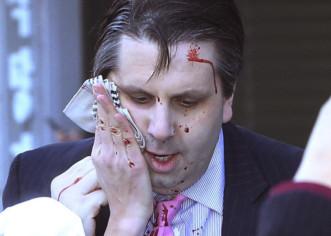 Herido el embajador estadounidense en Seúl tras ser atacado con un cuchillo