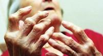 La artritis eleva el riesgo de pobreza, en especial en las mujeres